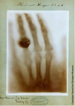Histórica radiografía de la mano de la esposa de Röntgen